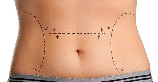 Improved Image with Liposuction Surgery