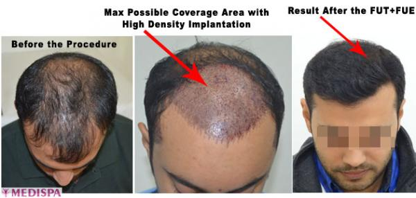 Medispa hair transplant clinic.