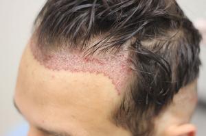 Hair transplant cost dubai
