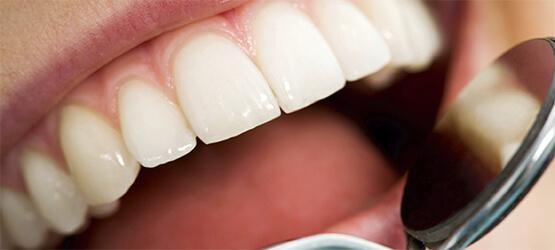 Best Dentists in Dubai